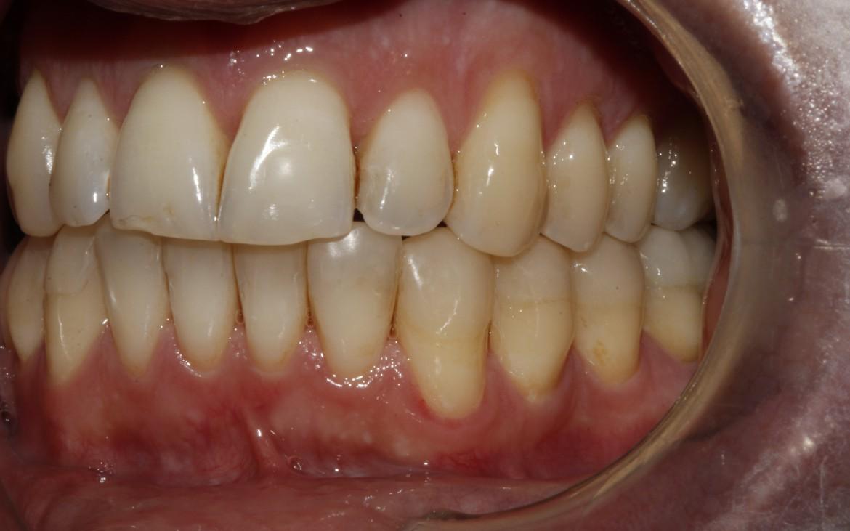 Vista lateral esquerda:Caninos e molares na relação oclusal classe I de Angle. Guia de lateralidade e guia anterior reestabelecidos.