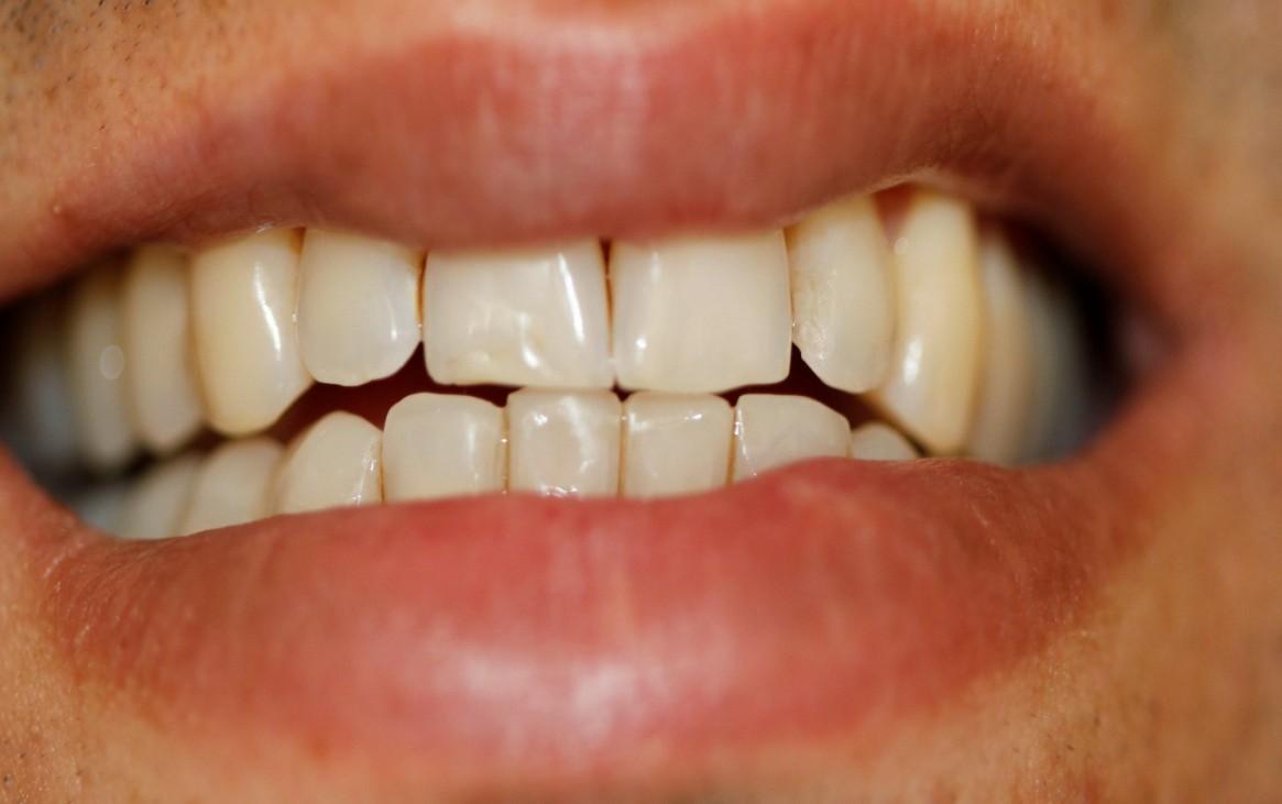Guia anterior suave – ainda não realizadas as lâminas nas palatinas dos dentes superiores anteriores.