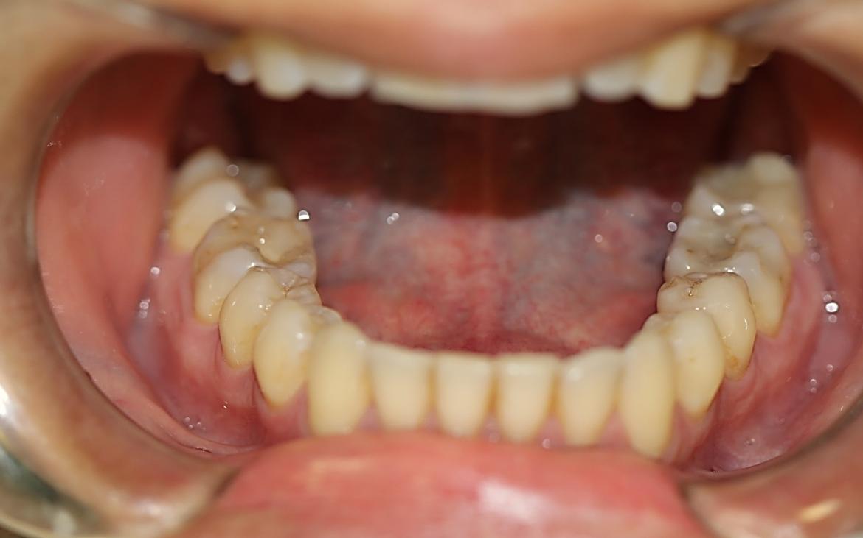 Vista oclusal dos dentes inferiores (Cor A3)