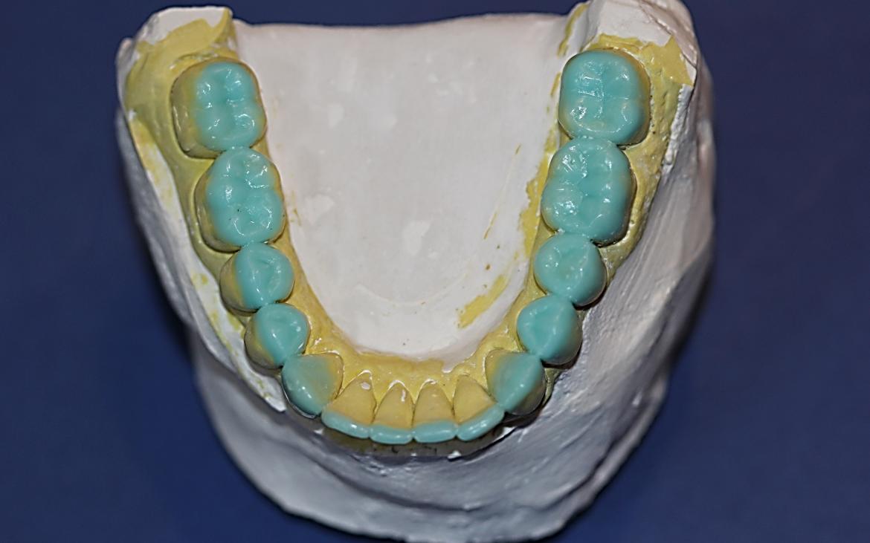 Ceroplastia realizada nos terço incisais dos anteriores e oclusal dos posteriores inferiores.
