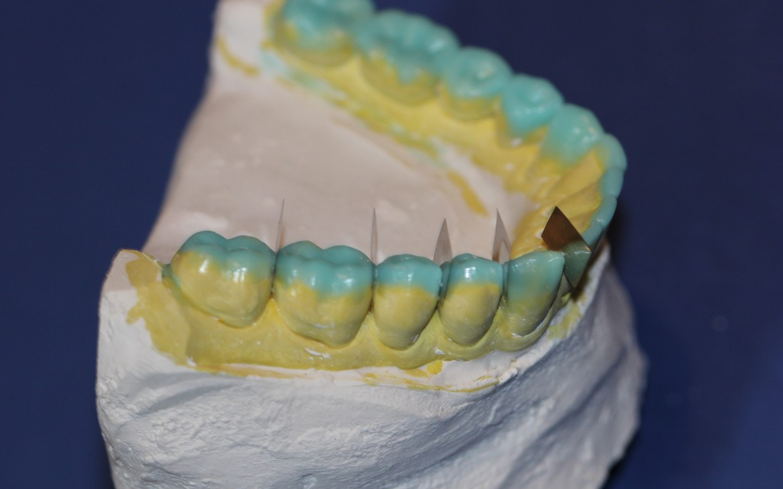 Dentes posteriores – vertentes internas rasas, formato oclusal lobular cheio valorizando sulcos principais e sulcos de escape.