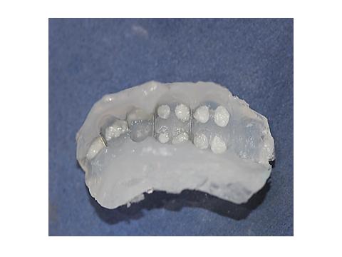 Aplicação da resina Charisma Diamond cor CL (clear) nas pontas das cúspides.