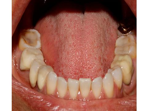 Vista oclusal dos dentes inferiores antes da reabilitação.