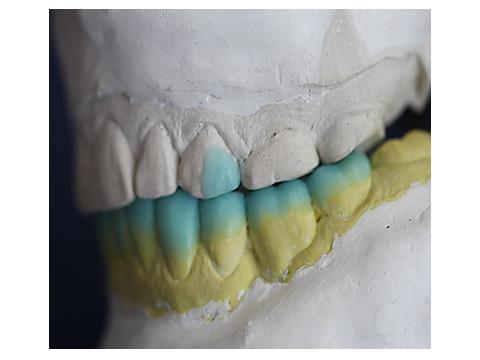 Ceroplastia dentes inferiores.
