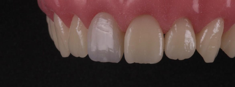 Resultado final por uma vista lateralizada, mostrando a capacidade de polimento da resina de esmalte Aura – SDI