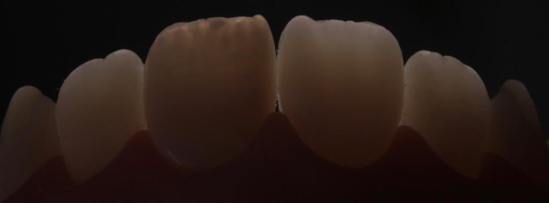 Imagem mostrando a translucidez incisal obtida com este sistema.