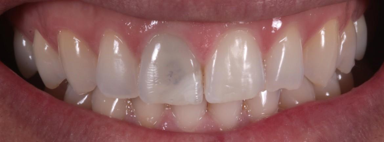 Dente 11 escurecido pós tratamento endodôntico.