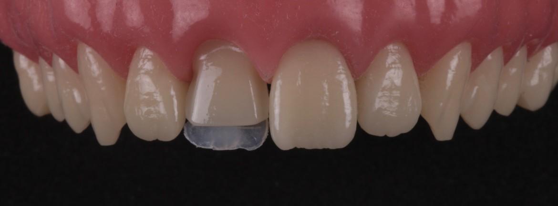 Resina de esmalte palatino (E1) posicionada com a ajuda da guia de silicone palatina.