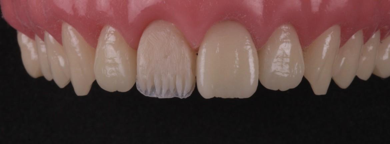 Resinas de dentina sendo utilizadas. Uma dentina mais saturada no terço cervical (DC3) e uma dentina menos saturada (DC2) para terços médio e incisal. Observar a escultura dos mamelos incisais.