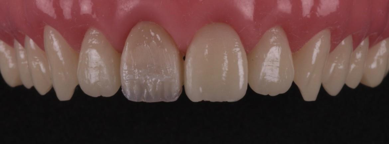 Resina de uma maior translucidez aplicada nos espaços entre os mamelos. Opcionalmente, um corante para resinas compostas pode ser utilizado para alcançar algumas características como manchas brancas, saturação cervical dentre outras.