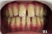 Ao exame clínico, observou-seuma coloração amarelada nos elementos dentais e vários diastemas envolvendo os dentes superiores e inferiores