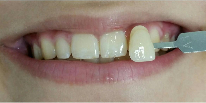 Verificação de coloração dental