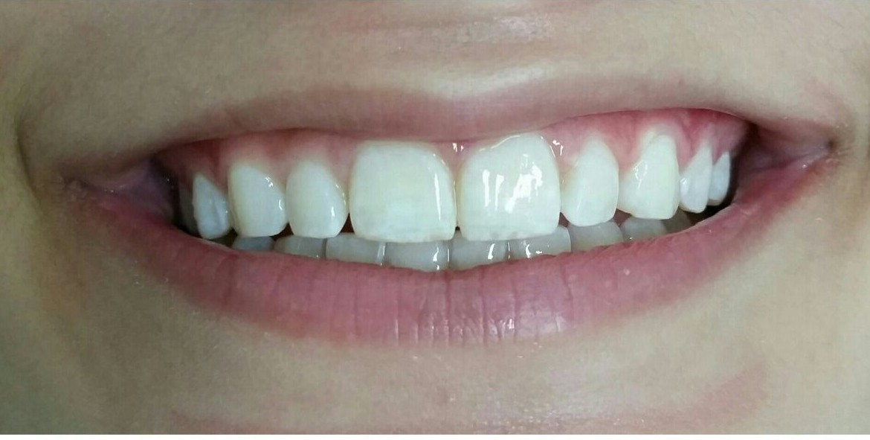 Sorriso do paciente depois do clareamento