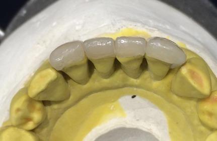 Aplicação do compósito Charisma Diamond – Cor A3,5 (resina de dentina Charisma Diamond OD – opaque dark + resina de esmalte A3,5) dos incisivos anteriores inferiores.