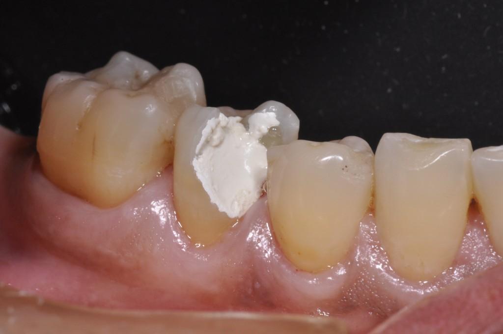 Foto inicial mostrando a grande destruição dental envolvendo a face vestibular, mesial e oclusal do segundo pré-molar inferior direito.