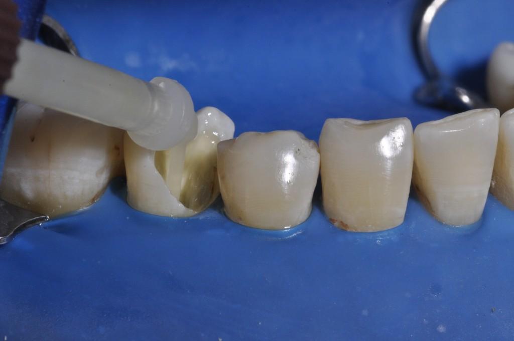 Aplicação do cimento resinoso dual Allcem Core (FGM) desde o ápice do canal radicular.