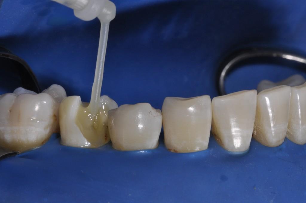 Injeção de Allcem Core (FGM) ao redor do pino de fibra para preenchimento da porção coronária e, em seguida fotopolimerização por 40 segundos.
