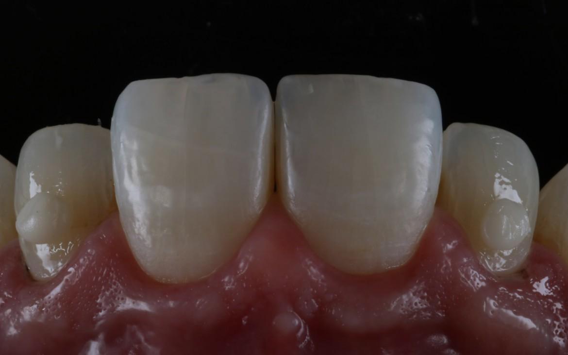 Massa de resina DC2 aplicada no terço médio e cervical.