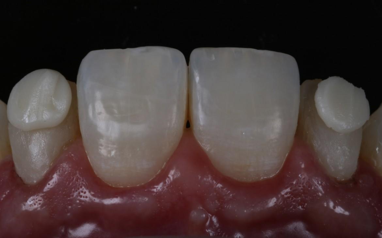 Massa de resina DC1 aplicada no terço médio e incisal.
