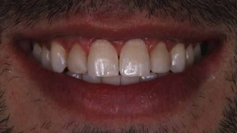 Sorriso inicial do paciente