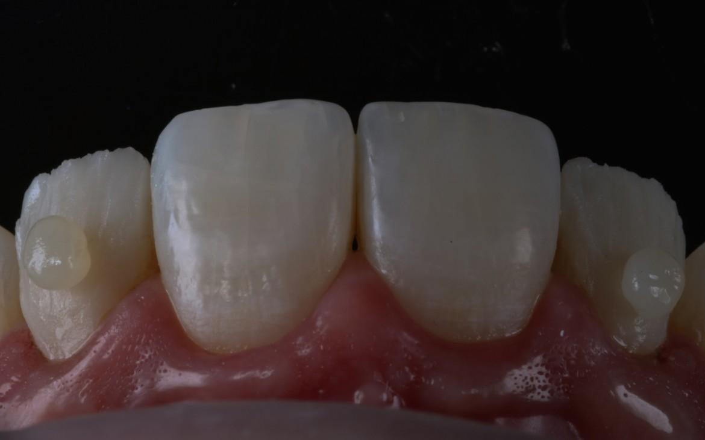 Aplicação da massa de resina para esmalte E2 no terço médio e cervical.