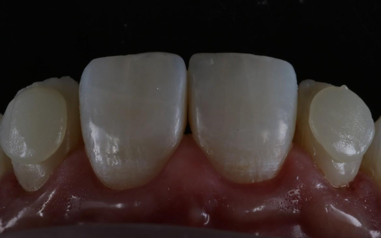 Resina de esmalte E1 aplicada sobre toda a superfície vestibular.