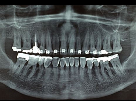 Radiografia panorâmica intermediária