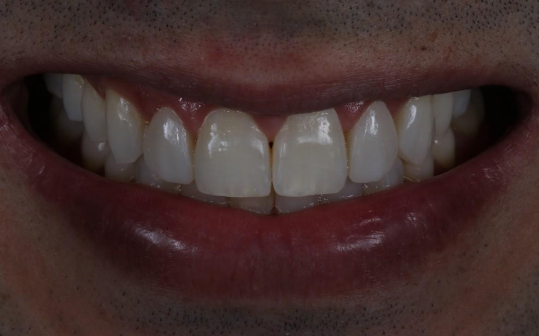 Resultado final pós polimento evidenciando o excelente mimetismo e alto brilho da resina Aura.