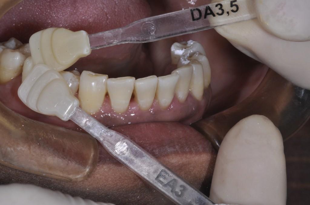 Tomada de cor: Com base no remanescente dentário e nos dentes vizinhos, definimos a cor das resinas que seriam utilizadas com ajuda da escala de cor da resina Opallis (FGM). Nessa imagem, tomada de cor para dentina e esmalte.