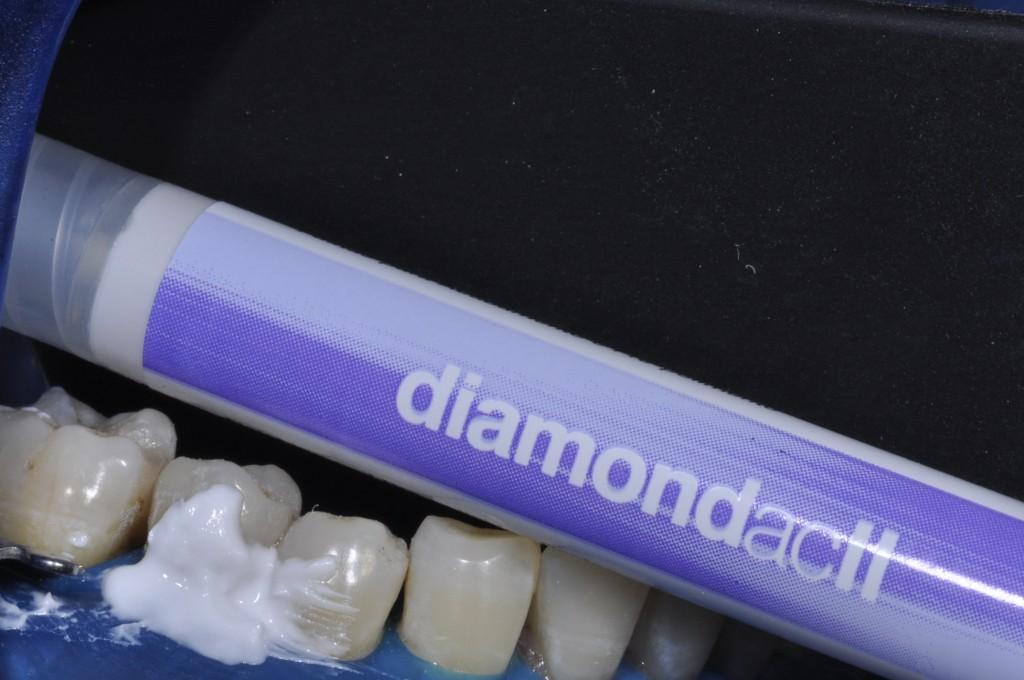 Polimento com pasta Diamond ACII (FGM).