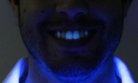 Fotografia inicial de face do paciente sobre luz negra