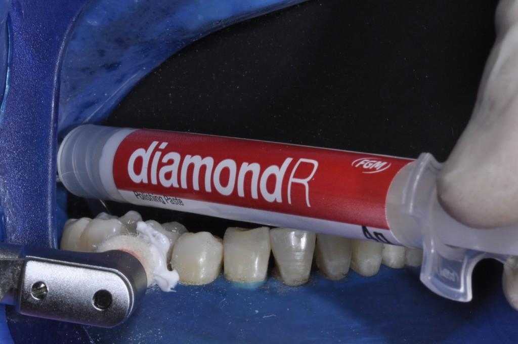 Polimento com pasta de polimento final Diamond R (FGM) e feltro Diamond (FGM) em baixa rotação