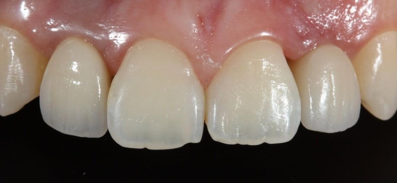 Restauração dos implantes concluídas