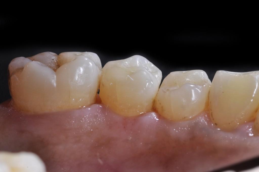 Vista Lingual da restauração cimentada