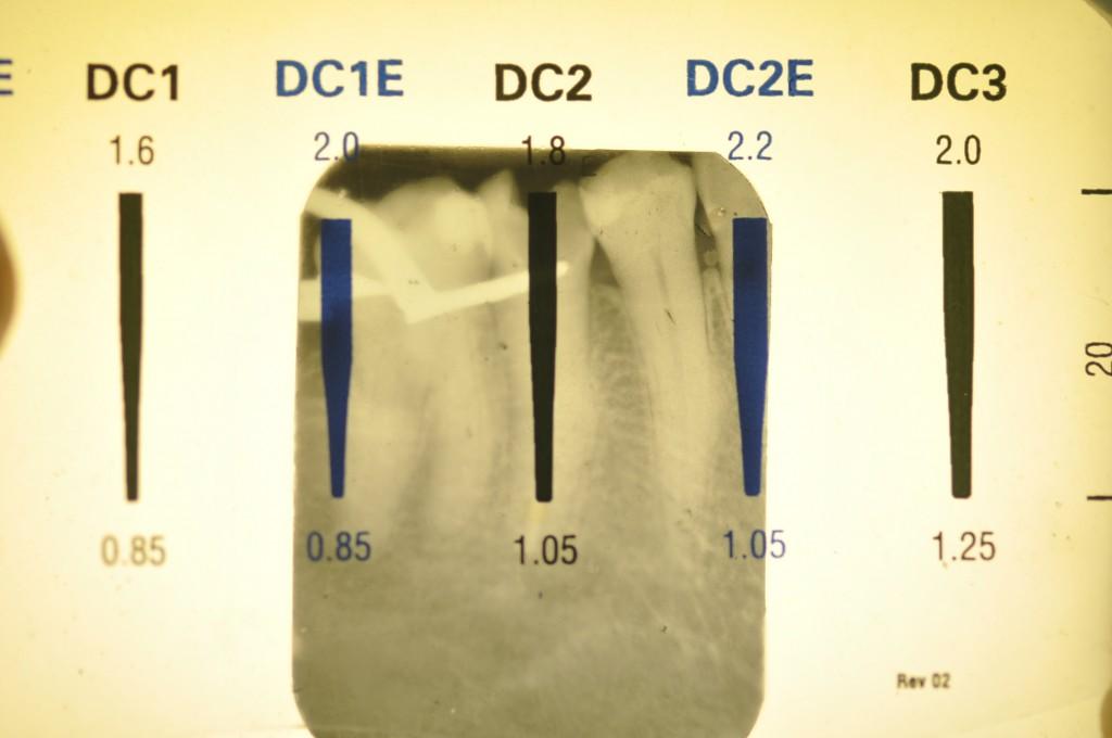 Escolha do pino de fibra DC2 com base na régua-guia do sistema White Post (FGM).