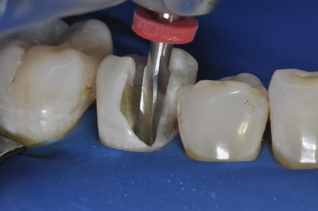 Atenção à radiografia e à angulação do canal radicular. Esse passo é importante para que não haja trepanação da raiz. Inicio do preparo do canal com broca White Post (FGM)