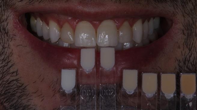 Escolha de cor com escala da própria resina após finalização do clareamento.