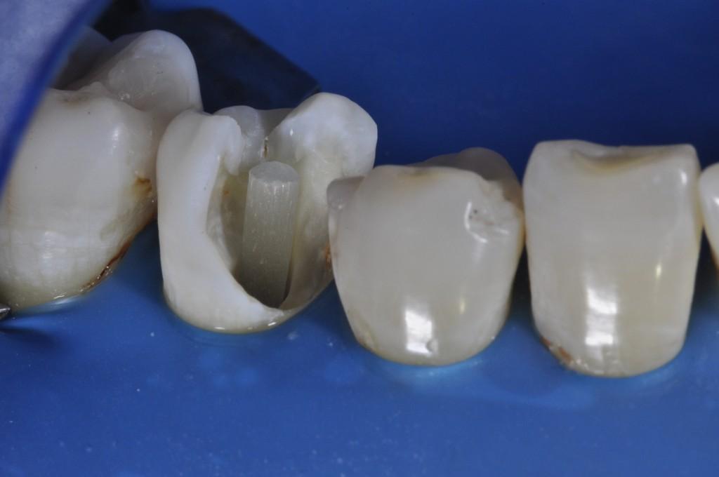 Prova do pino cortado em posição no canal radicular, evitando sua exposição para o meio bucal.