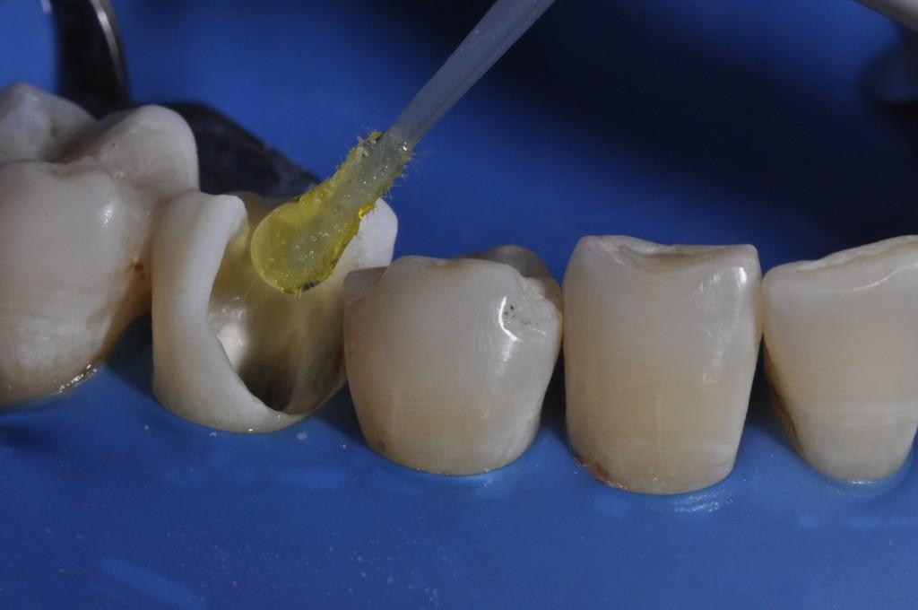Aplicação do sistema adesivo Ambar Universal (FGM) sobre dentina e esmalte. Foi realizada a técnica de condicionamento seletivo, somente em esmalte .
