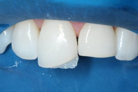 Aspecto da porção palatina reconstruída no dente
