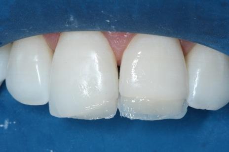 Inserção de resina de dentina OL