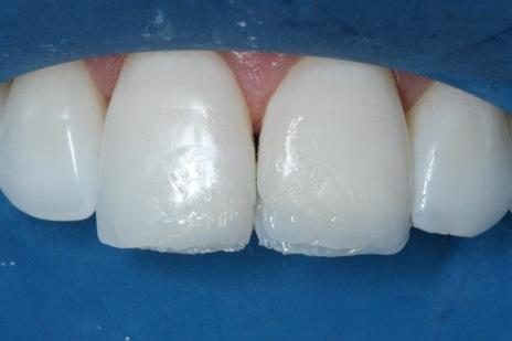 Inserção de resina de esmalte B1