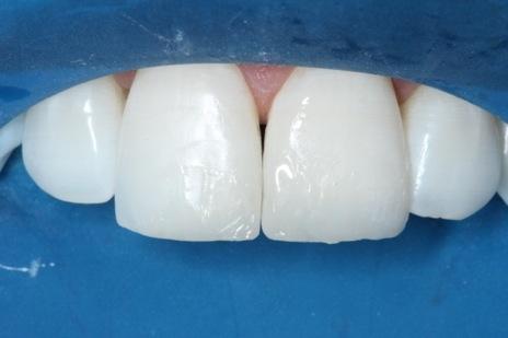 Inserção de resina BL no esmalte e finalização