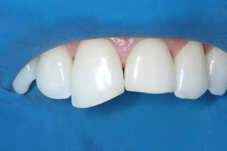 Aspecto clínico após preparo dental