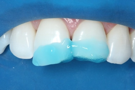 Condicionamento ácido do esmalte e dentina