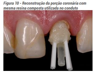 Figura 10 - Reconstrução da porção coronária com mesma resina composta utilizada no conduto
