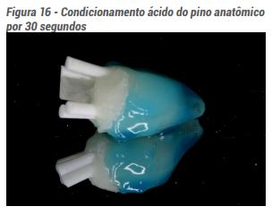 Condicionamento ácido do pino anatômico por 30 segundos