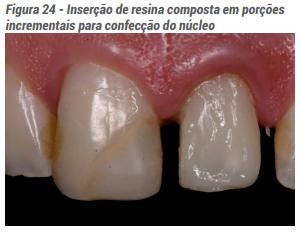 Inserção de resina composta em porções incrementais para confecção do núcleo