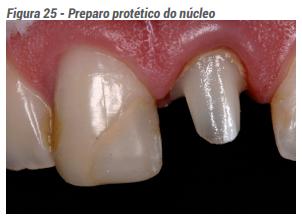 Preparo protético do núcleo