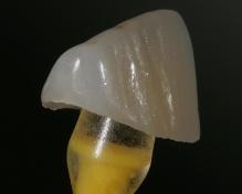 Cor, brilho e textura do fragmento cerâmico feito em IPS e.max – Pastilha HT B1 (TPD José Carlos ROMANINI)